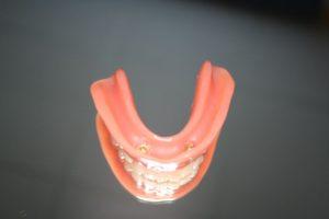 Miniimplantatabstützung einer Prothese